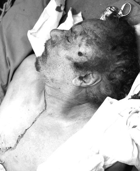Imágen del cadáver de Gadafi cuando era trasladado en una ambulancia a un hospital en Misrata. (Foto: EFE)