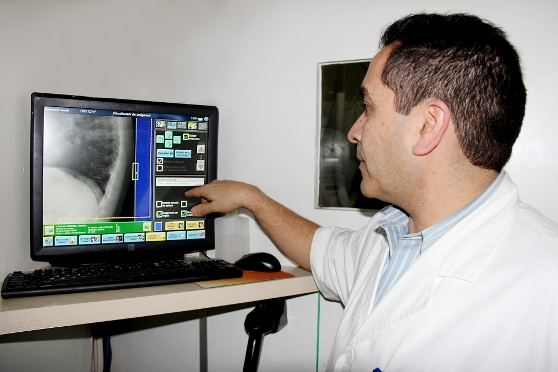 Hospital del Profesor optimiza su gestión con radiología digital de Carestream
