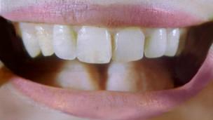 Los investigadores en Suecia no estudiaron los hábitos de higiene bucal de los padres.