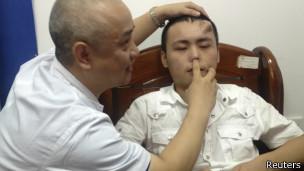 Los cirujanos dijeron que la nueva nariz está en buena forma y la cirugía de trasplante podría realizarse pronto.