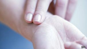 La fibrilación auricular se caracteriza por latidos cardíacos irregulares.