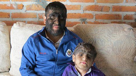 """Jesús """"Chuy"""" Fajardo Aceves y Luis Abraham Cervantes Aceves padecen una condición genética llamada hipertricosis congénita lanuginosa."""