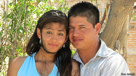 Karla Michelle Aceves ha debido vivir con la condición desde su nacimiento.