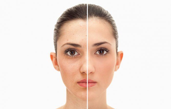 El tratamiento de belleza de las modelos de Elite para lograr un rostro resplandeciente