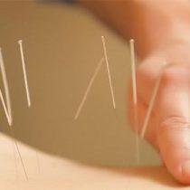 La acupuntura como alternativa para tratar las molestias alergias
