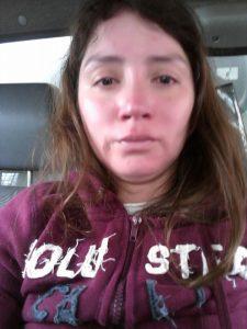 María Paz Cajas con las huellas de los golpes que recibió