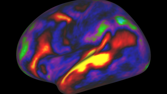 El increíble hallazgo de 97 zonas que no se conocían del cerebro
