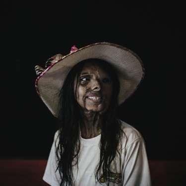 El retrato de Zacharie Rabehi de Shaboo fue presentado en esa misma categoría. Ella fue víctima de un ataque con ácido perpetrado por su padre cuando tenía un año. Shaboo fue adoptada por un orfanato en Bombay, India. Su madre, que también fue atacada, murió como resultado.