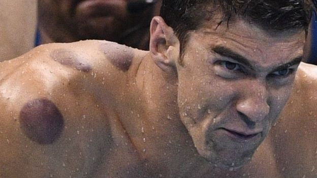 Río 2016: ¿qué son los círculos rojos en la espalda de Michael Phelps y otros atletas olímpicos?
