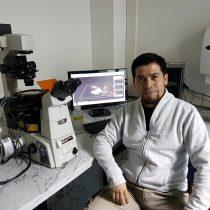 Científicos chilenos descubren rol de proteína en el desarrollo de metástasis