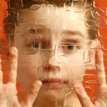 Estudiando dientes de leche científicos descubren fallas cerebrales del autismo