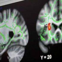 Neurocientíficos analizan con resonancia magnética cerebro de pedófilos