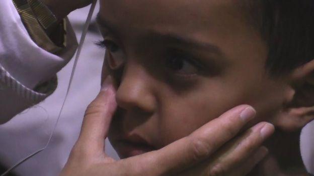 Muchos niños en Madaya están malnutridos, afirman los trabajadores de ayuda.