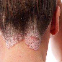 Por qué cientos de miles de personas con psoriasis siguen sufriendo en silencio