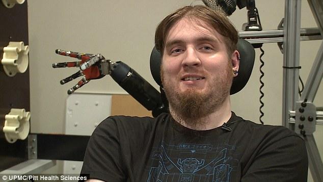 El implante cerebral y el brazo robótico que permitieron a un joven recuperar el tacto