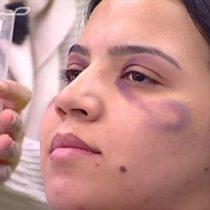 [VIDEO] Marruecos: el polémico tutorial de un canal de televisión que enseña a mujeres a maquillarse los moretones provocados por golpes