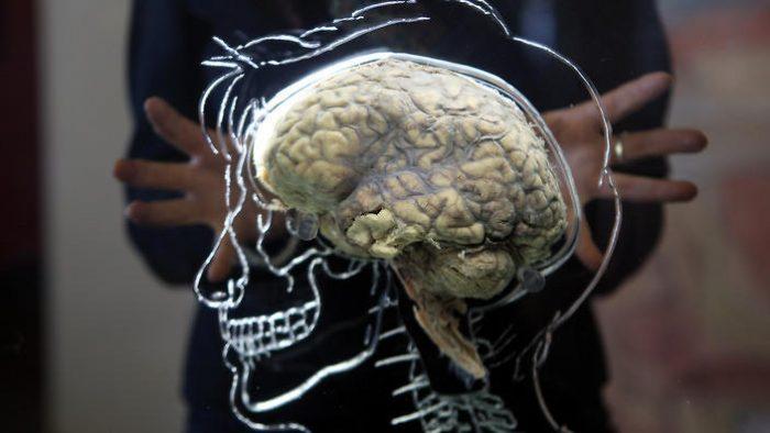 Hallazgos sobre conectividad cerebral permitirán ayudar a pacientes con demencias