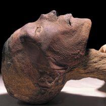 Viruela en momia del siglo XVII pone en duda la historia de esta enfermedad