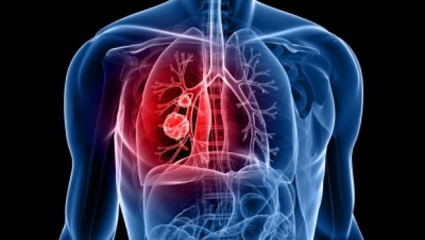 Cáncer de pulmón: principal causa de muerte en América Latina