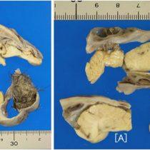 La operación de apendicitis que acabó descubriendo un cerebro en miniatura, huesos y pelo en un ovario