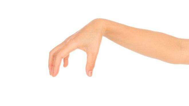 El aterrador síndrome que impide controlar las acciones que realiza tu propia mano