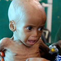 Víctimas de la desigualdad mundial: la agonía de los niños desnutridos que no tienen fuerza ni para llorar