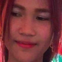 La odisea médica de una camboyana que perdió medio rostro por una necrosis