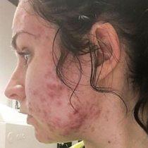 """""""Me desperté y tenía bultos en el mentón y en la frente"""": la joven a la que le apareció acné severo de un día para otro"""