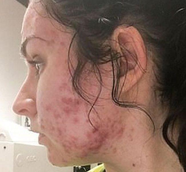 «Me desperté y tenía bultos en el mentón y en la frente»: la joven a la que le apareció acné severo de un día para otro