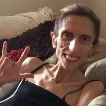 """""""No quiero ser la que no sobrevivió"""": la nueva esperanza para Rachael, una mujer que pesa 20 kilos por causa de la anorexia"""