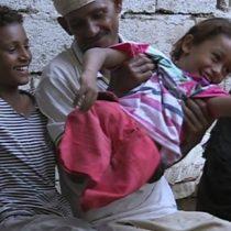 [VIDEO] Emad, el niño que se quedó sin piernas a los 4 años cuando un misil impactó en su casa de Yemen