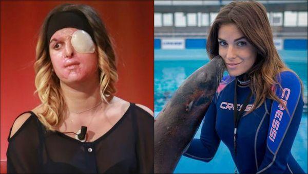 Modelo italiana desfigurada con ácido por su ex novio muestra su rostro en TV
