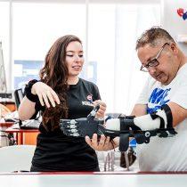 La revolución de la Fundación Prótesis 3D