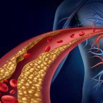 Algoritmo de matemático chileno evita exámenes invasivos al corazón y las arterias