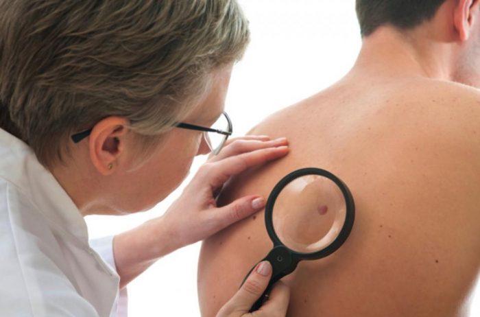 ¿Por qué los adultos mayores son más propensos a sufrir cáncer de piel?