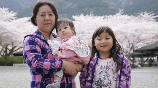 ¿Por qué las cesáreas en Japón y otros países asiáticos suelen ser verticales en vez de horizontales?