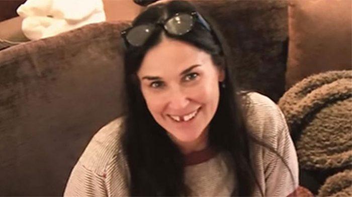 Demi Moore perdió dos dientes por estrés ¿Es algo común?