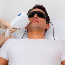 Razones laborales y estéticas llevan a hombres a optar por fotodepilación de barba
