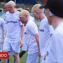 [VIDEO] Cómo la Liga Premier ayuda a combatir prejuicios raciales contra los albinos en África