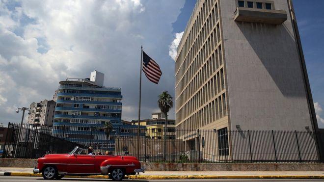 Casi ciencia ficción: EE.UU. dice que son 16 sus empleados en Cuba con pérdida auditiva por causa de un