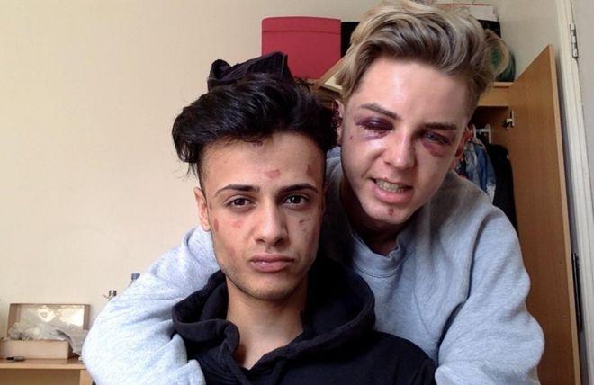 """""""Casi me dejaron ciego por escoger a la persona que amo"""": el dramático relato de parejas gay que fueron brutalmente atacadas"""