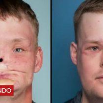[VIDEO] La mujer que conoció al hombre a quien le trasplantaron la cara de su difunto esposo
