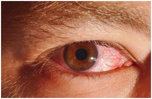 Riesgos y enfermedades a la vista provocadas por exposición prolongada y sin protección a luz solar