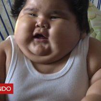 [VIDEO] El bebé mexicano de 10 meses que pesa casi 30 kilos y los médicos no saben por qué