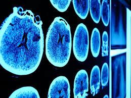 El prometedor avance contra la devastadora enfermedad neurodegenerativa de Huntington