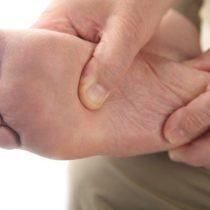 Crean nanomedicamento para tratar y prevenir el pie diabético
