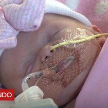 [VIDEO] La conmovedora fortaleza de una bebé que nació con el corazón fuera del pecho