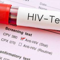 Superintendencia detectó 45 casos de incumplimiento en diagnóstico de VIH/Sida