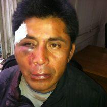 Justicia formaliza a carabinero por apremios ilegítimos contra comunero mapuche en 2014