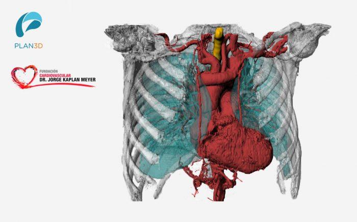 Cardiología Y Biomodelos 3D: Se unen para innovar en beneficio de los pacientes